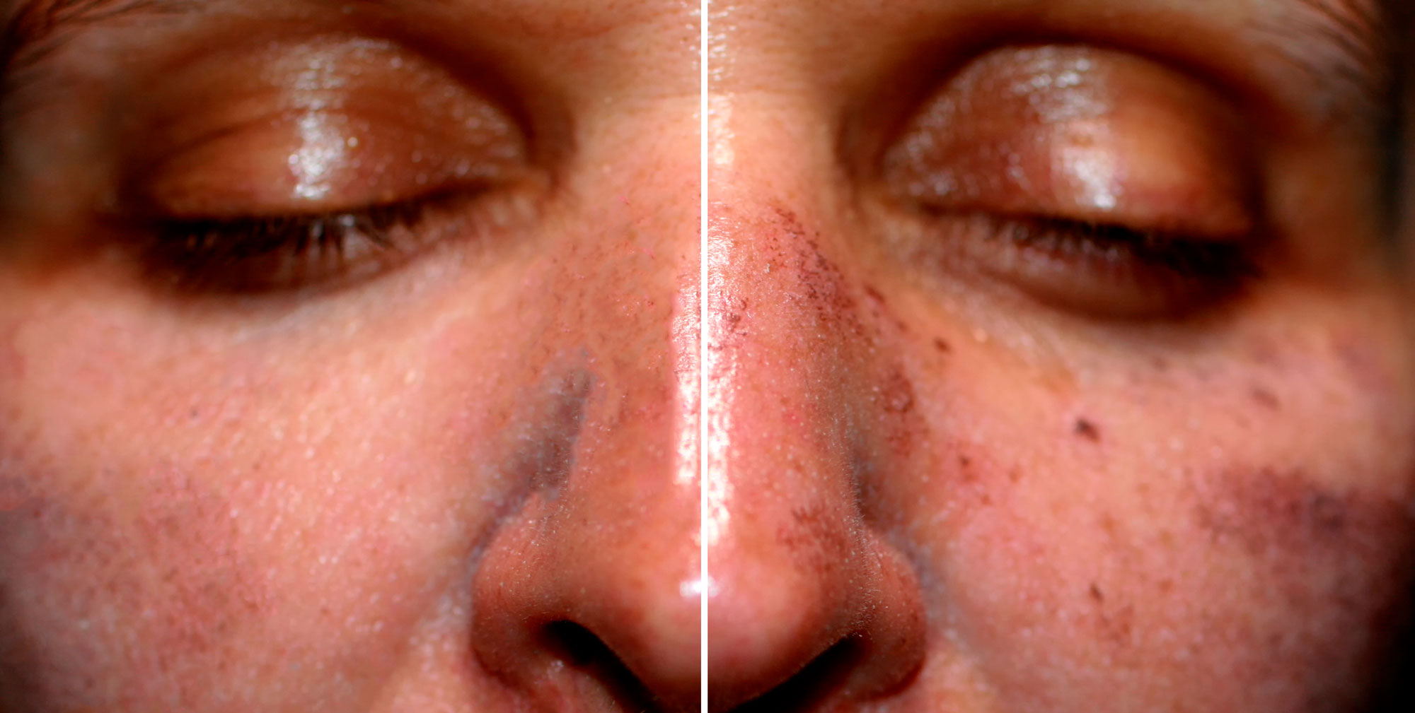 Q-Dermatology_Web-Banners_2