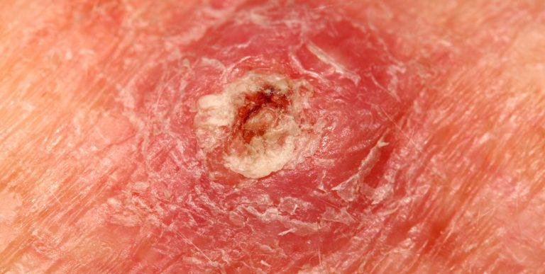 Q-Dermatology_Web-Banners_29