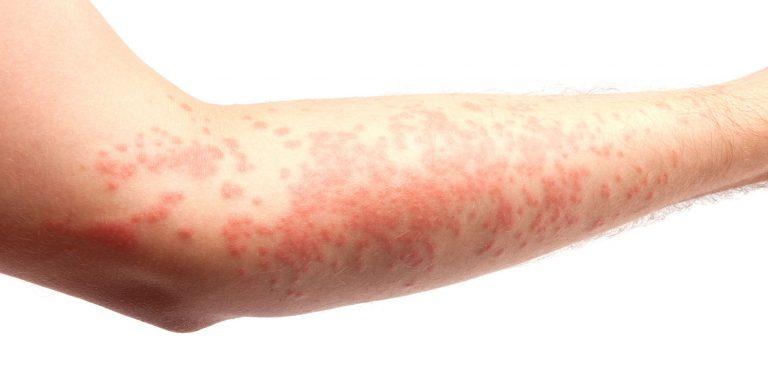 Q-Dermatology_Web-Banners_3